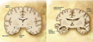 Alzheimer's Disease Brain