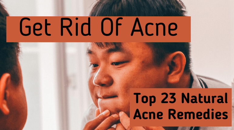 Get Rid Of Acne-23 Natural Acne Remedies