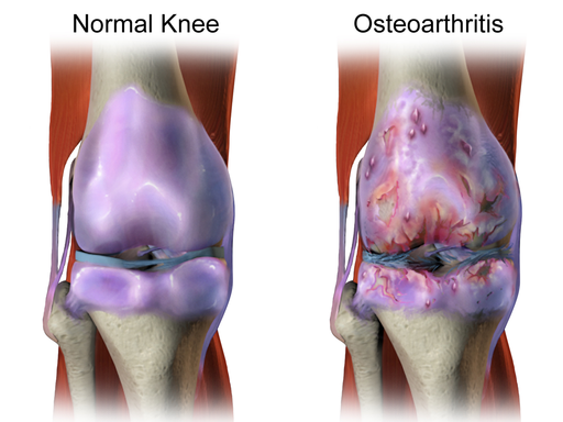 what types of arthritis can cause knee pain