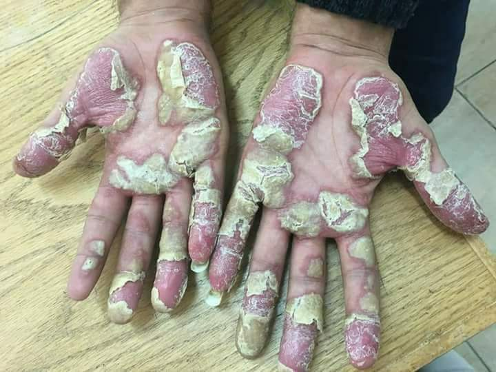 psoriasis pictures