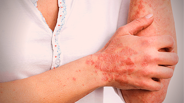 what is psoriasis about