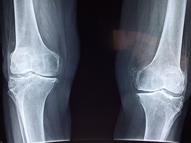 mechanical issues can cause knee pain